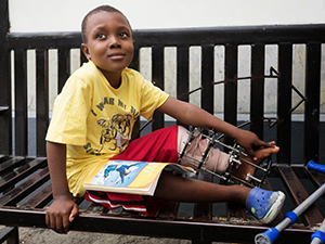 Kenn, an 8-year old boy with L tibla bone deficit due to osteomyelitis. He has had a bone transport procedure to grow two inches of new bone and dock the nonunion site while correcting the deformity.